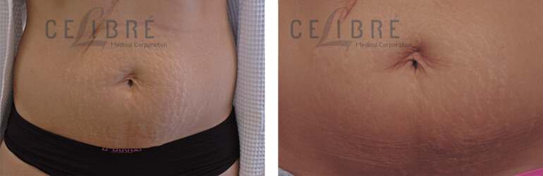 Stretch Marks Before And After Stretch Mark Removal Before