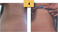 Stretch Mark Removal Before and After Pictures Sm 4