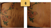 Stretch Mark Removal Before and After Pictures Sm 6