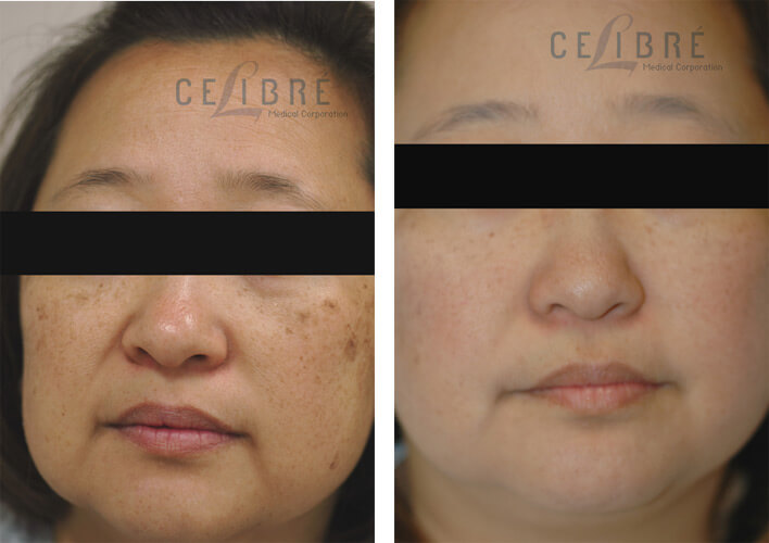 Sun Spots Removal Before And After Pictures 2