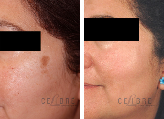 Sun Spots Laser Removal Before and After Pictures 4