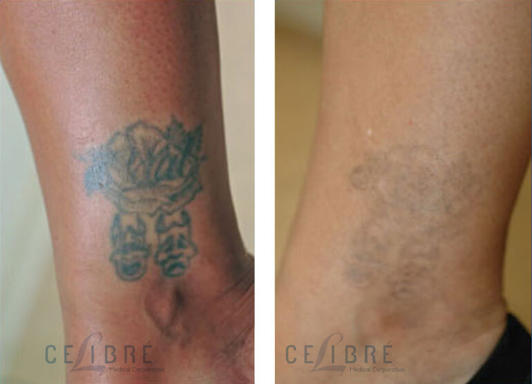 celibre.comTattoo Removal Before After Pictures 1