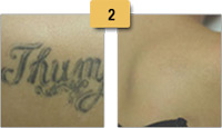 Tattoo Removal Before and After Pictures Sm 2