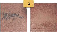 Tattoo Removal Before and After Pictures Sm 3