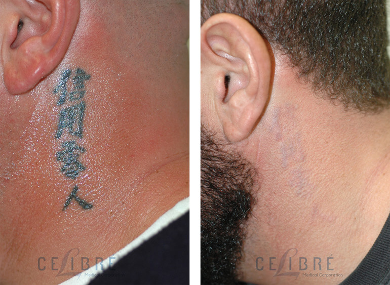 Los Angeles tattoo removal before and after pictures.