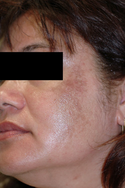 Melasma before