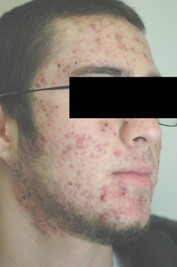 Isotretinoin (Accutane) » The Science of Acne