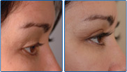 Latisse Eye Lash Enhancement