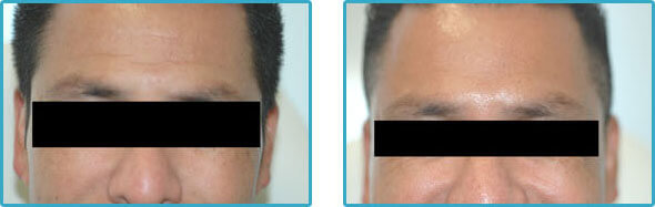 botox forehead lines before after photos