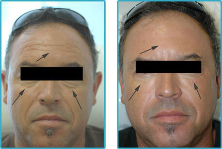 restylane injections dark circles under eyes