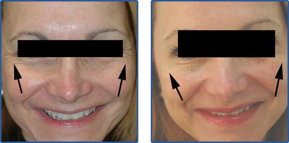 dysport injections before after pictures