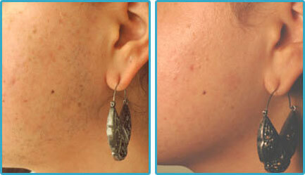 Laser Hair Removal Before After Photo 3