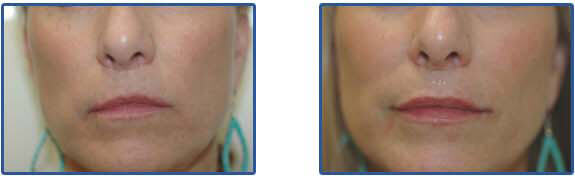 juvederm injections before and after photos