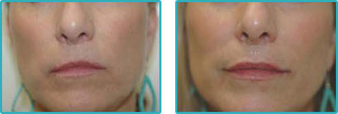 Juvederm Injections Before After