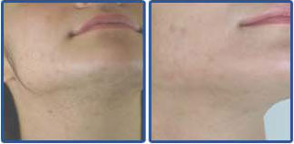 Laser Hair Removal Before After Photos