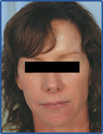 laser resurfacing after pictures