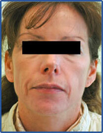 laser resurfacing before picture