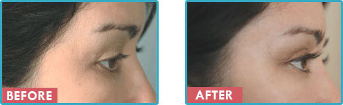 Latisse Treatment Before After Photos