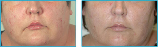 restylane and botox injections