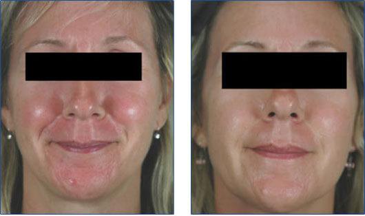 V laser treatment for rosacea los angeles
