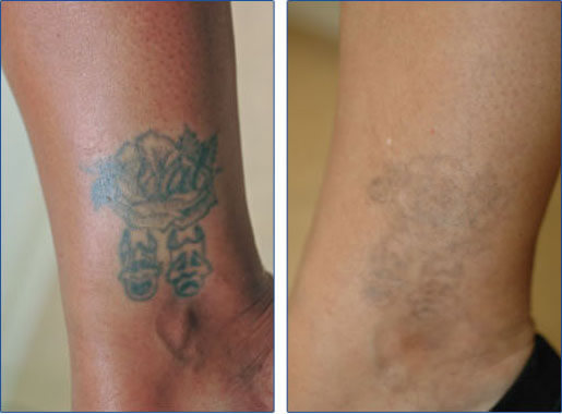 Ankle tattoo removal before and after photos following ONLY 3 laser