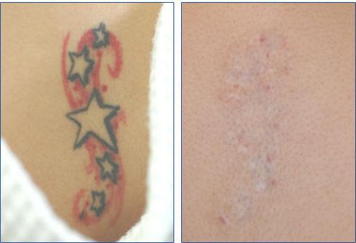 Tattoo Art Show: Arm Tattoo Designs