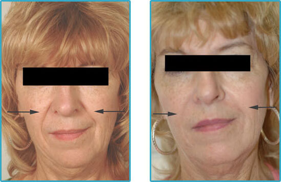 restylane juvederm perlane injections